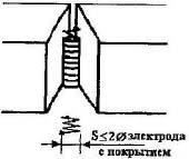 вертикальний шов